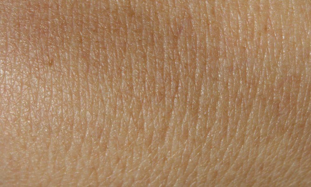 principales causas de la falta de pigmento en la piel