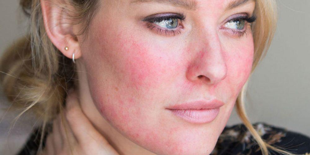 Rosácea, enfermedad crónica de la piel que afecta a un 10% de la población